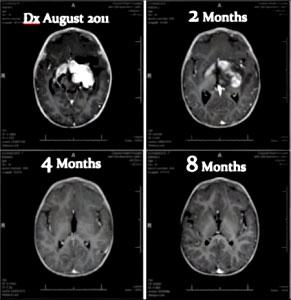 MRI-4-291x300